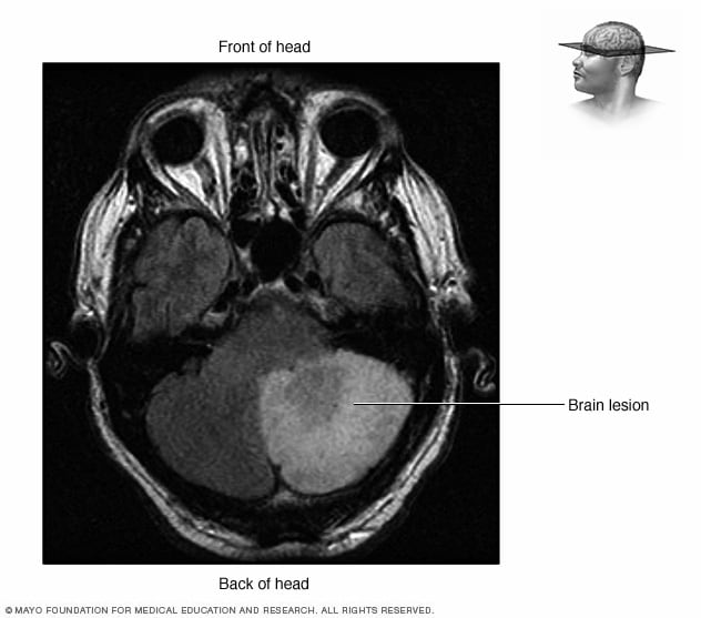 MRI showing a brain lesion