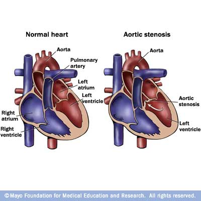 Illustration showing normal heart and aortic valve stenosis