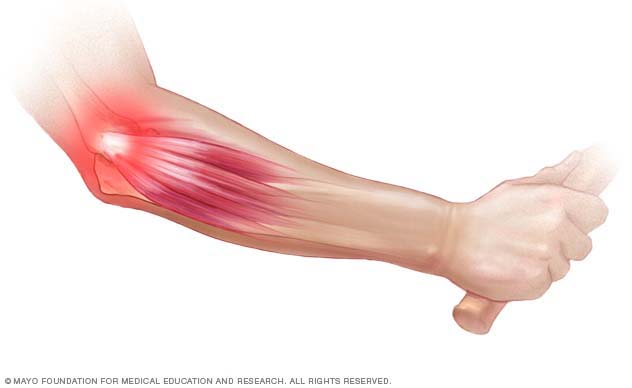 Illustration showing tennis elbow