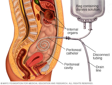 Image showing peritoneal dialysis