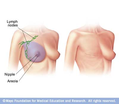 Illustration of modified radical mastectomy