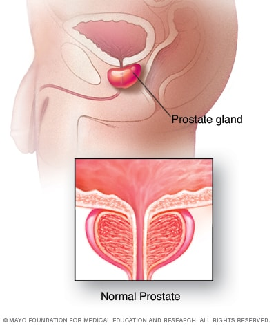 Illustration of normal prostate gland