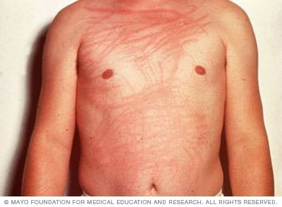 Photo of dermatographia