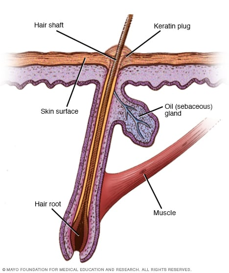 Illustration showing the keratin plug
