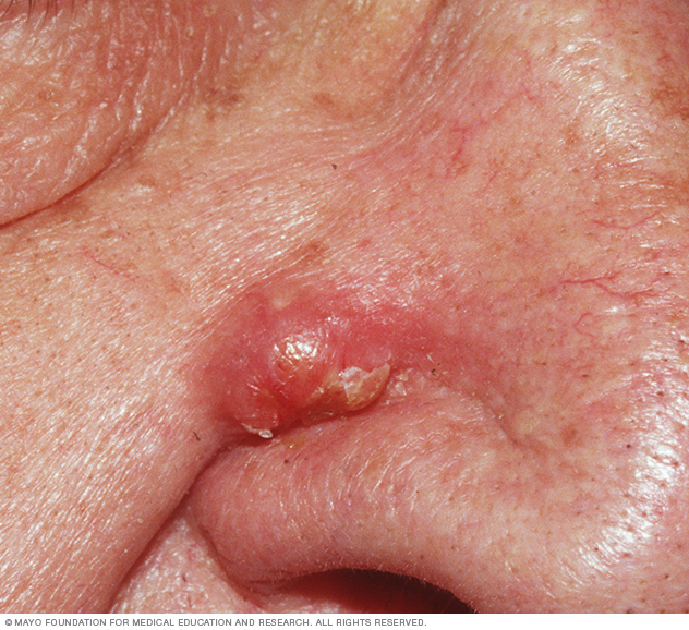 Photo of inflamed epidermoid cyst on side of nose