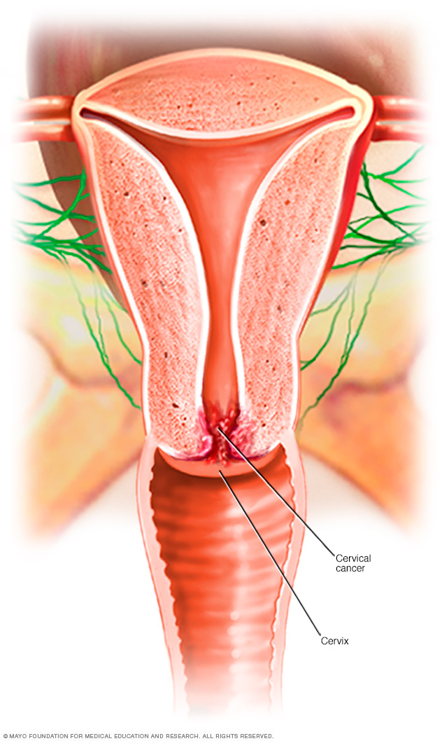 Illustration of cervical cancer