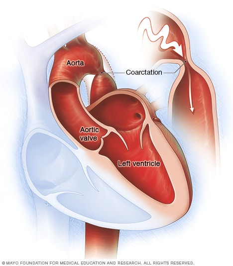 Illustration showing coarctation of the aorta