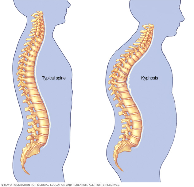 Illustration showing kyphosis