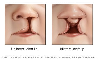 Illustrations of unilateral and bilateral cleft lip