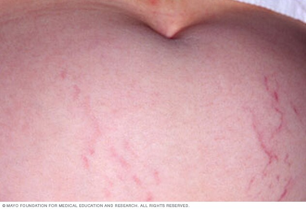 Image showing stretch marks in pregnancy