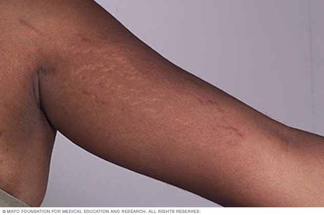 Image showing stretch marks on arm