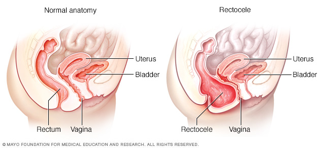 Illustration showing normal anatomy and rectocele