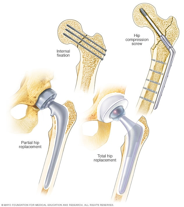 Illustration showing a variety of hip repair techniques