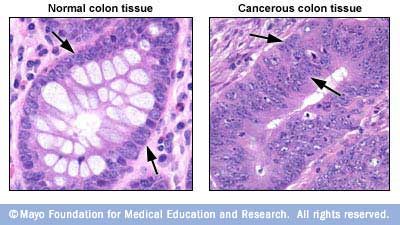 Image of normal colon tissue alongside cancerous colon tissue