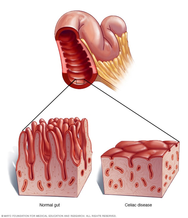 Illustration showing celiac disease