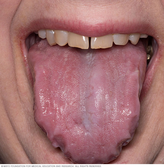 Photograph showing enlarged tongue, a sign of amyloidosis