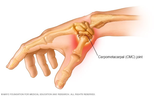 Illustration showing thumb arthritis