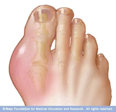 Illustration showing gout in the big toe