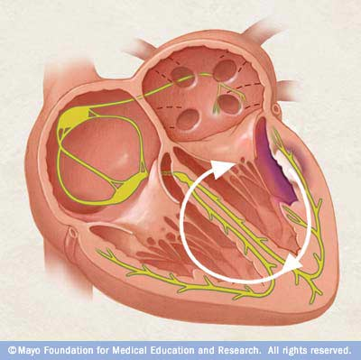 Illustration showing ventricular tachycardia