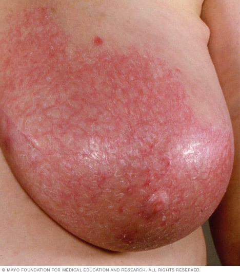 Photo of a woman with mastitis