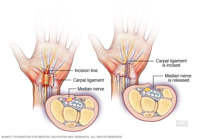 Illustration showing carpal tunnel release procedure