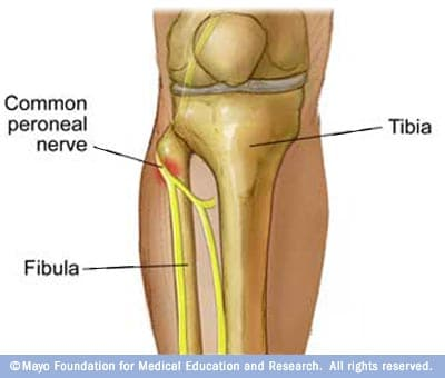Illustration of peroneal nerve