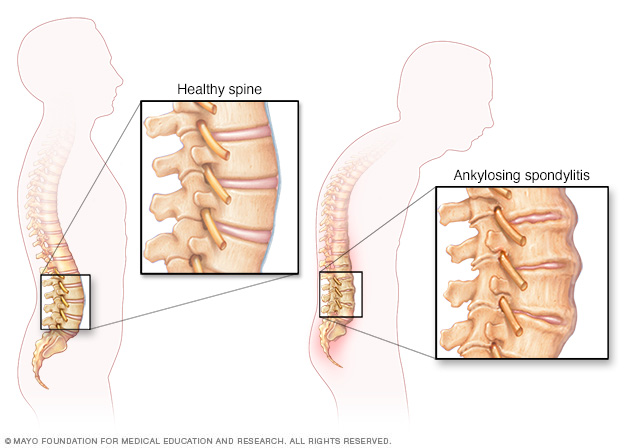 Illustration showing ankylosing spondylitis