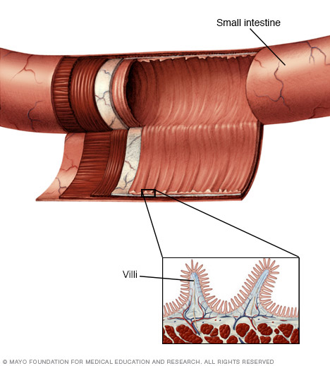 Illustration of small intestine lining and villi