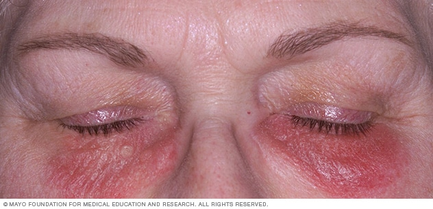 Image showing contact dermatitis on the face