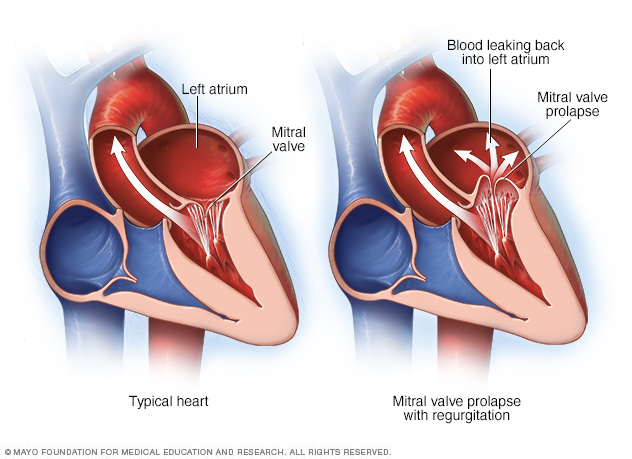 Illustration of heart showing mitral valve prolapse and regurgitation