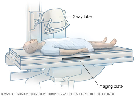 Illustration of a man having an X-ray exam