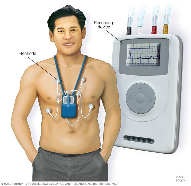 Illustration showing a man wearing a Holter monitor