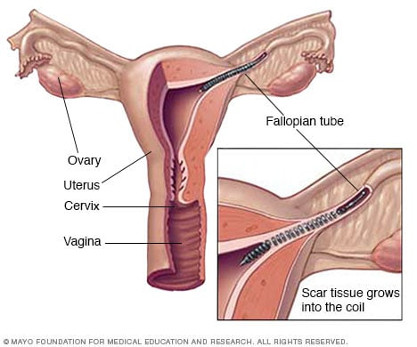 Illustration showing Essure placement