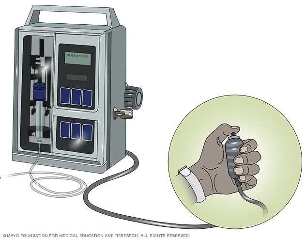 Photo of a patient-controlled analgesia (PCA) system