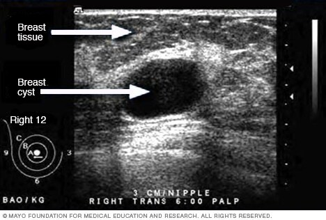 Ultrasound image of a breast cyst