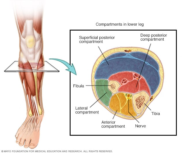 Image showing chronic exertional compartment syndrome