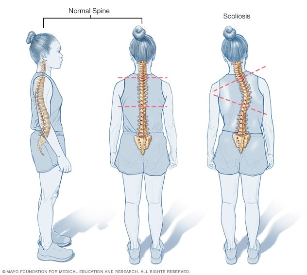 Illustration comparing normal curves in spine to scoliosis