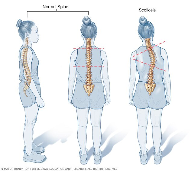 Scoliosis Mayo Clinic