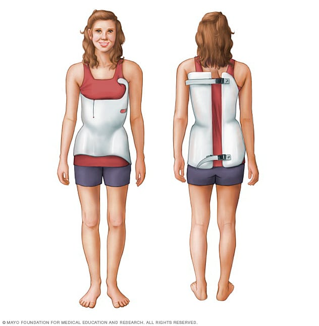 Illustration of a scoliosis brace