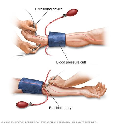 Ankle Brachial Index Mayo Clinic