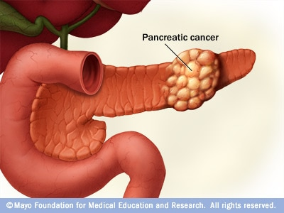 Illustration showing pancreatic cancer