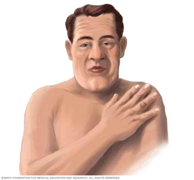 Illustration showing person with acromegaly