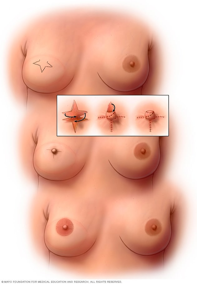 Illustration showing nipple reconstruction