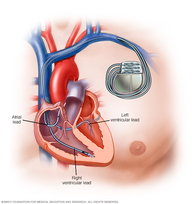 Illustration of a pacemaker