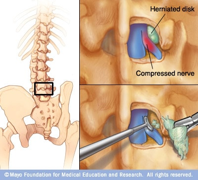 Illustration showing removal of herniated portion of spinal disk
