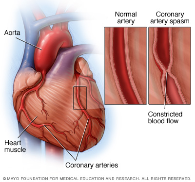 Illustration showing coronary artery spasm