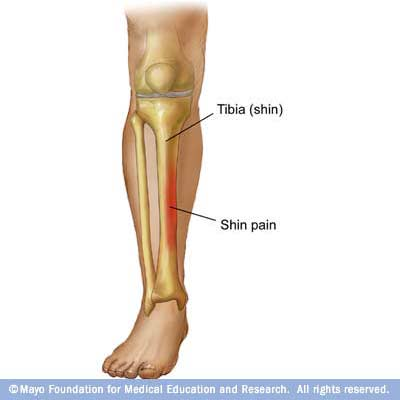 Illustration of shin splints showing area of pain