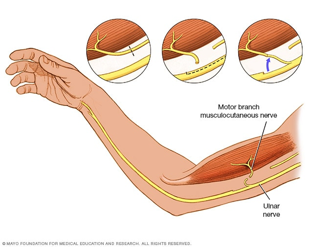 Illustration showing nerve transfer