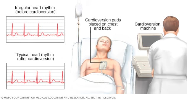 Illustration showing a person undergoing cardioversion