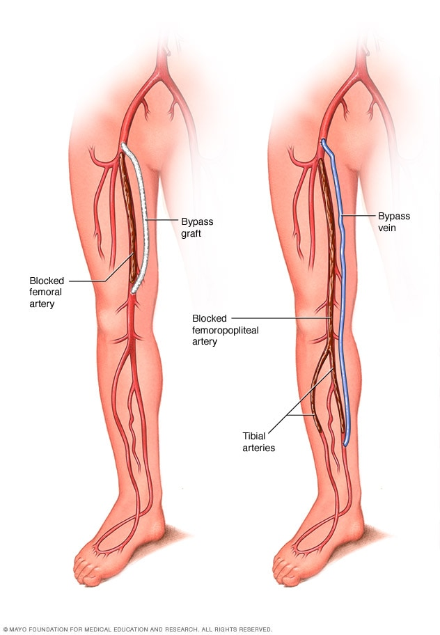Illustration showing graft bypass for peripheral arterial disease